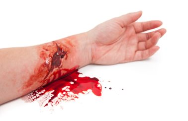 Simulation Wounds